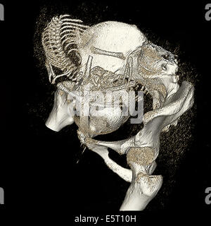 Three-dimensional computed tomographic reconstruction of pregnant woman pelvis showing the skeleton of a 9 months - Stock Photo