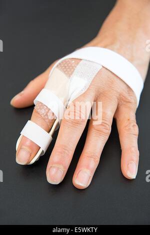 Finger orthosis - Stock Photo