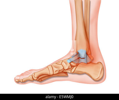 foods to avoid to decrease uric acid foods to avoid when having high uric acid gout relief during attack