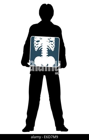 Editable vector silhouette of a man holding an x-ray of his abdomen - Stock Photo