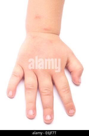 swollen hand Stock Photo, Royalty Free Image: 80117697 - Alamy