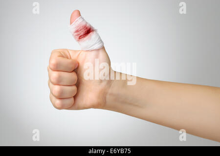 Injured finger with bloody gauze bandage - Stock Photo