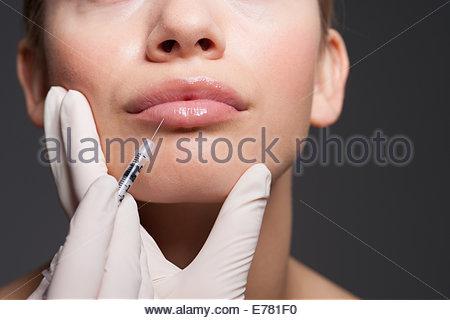 Close up of woman receiving botox - Stock Photo