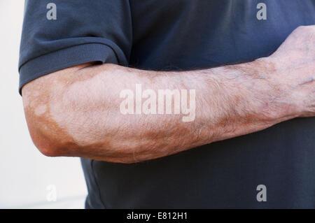 Vitiligo - Stock Photo