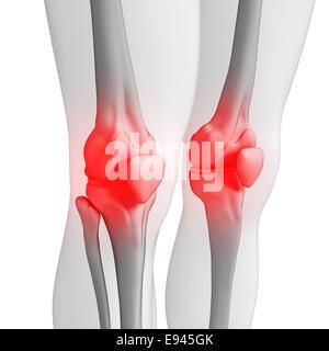 Illustration of human knee pain artwork - Stock Photo