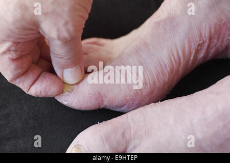A man's foot with toenail fungus and dry, peeling skin from athlete's foot - Stock Photo