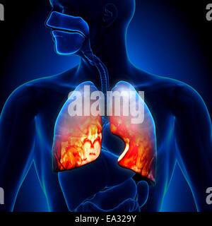 Pneumonia - Lungs Inflammatory Condition - Stock Photo