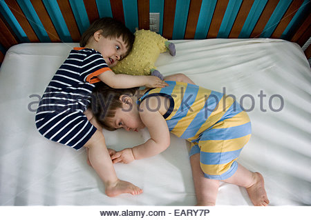 Identical twins with Twin Transfusion Syndrome, grow at different rates. - Stock Photo