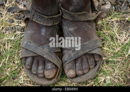 Dirty feet of an ethiopian teenager, Ethiopia - Stock Photo
