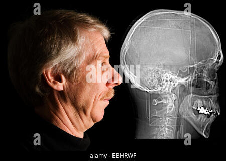 Man beside his CT (Computed Tomography) scan of his head.