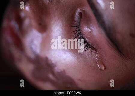 Dhaka, Bangladesh. 27th August 2013 -- Syada Mahmuda Mukta, 17, suffers from her injuries from acid attack at Dhaka - Stock Photo
