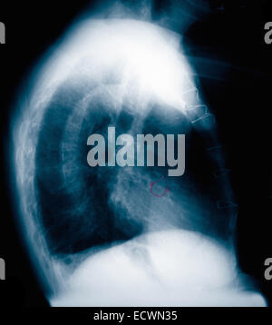 Chest x-ray lateral view of a man with pneumonia. - Stock Photo