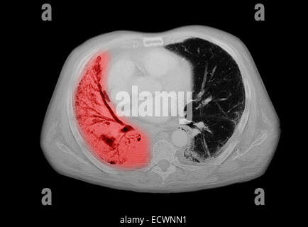 CT scan of the chest showing pneumonia. - Stock Photo
