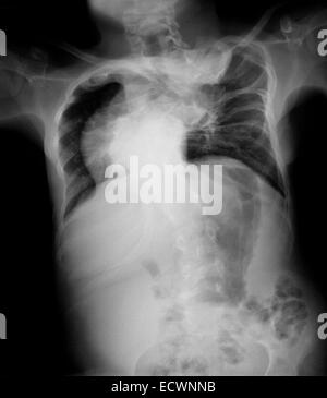 Chest x-ray of a 15 year old boy with severe scolosis. - Stock Photo