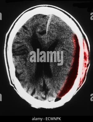 87 yo male CT scan subdural hematoma and brain atrophy - Stock Photo