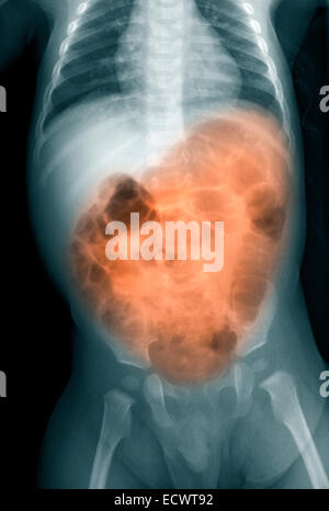 X-ray of a 7 month old boy with vomiting and diarrhea. - Stock Photo
