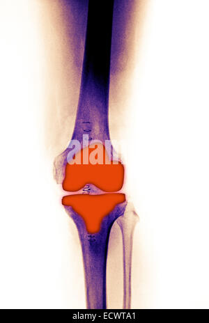 knee replacement in a 61 year old female.