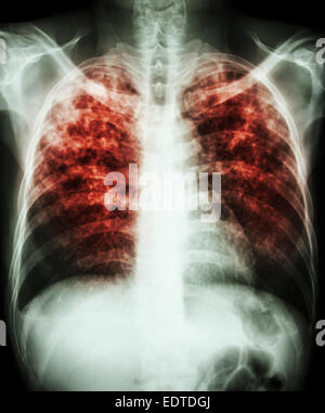 'Pulmonary tuberculosis'  Film chest x-ray show interstitial infiltration both lung due to mycobacterium tuberculosis - Stock Photo