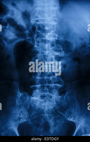 'Spondylosis'  Film x-ray : lumbar spine with spur & collapse at body of spine - Stock Photo