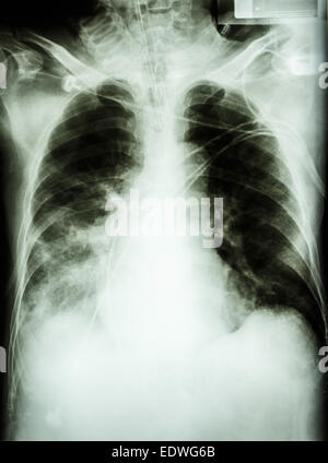 'Pneumonia with respiratory failure'  film chest x-ray of patient with endotracheal tube,catheter. he was treated - Stock Photo