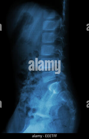 Lumbar spine of child ( X-ray thoracic - lumbar spine ) ( lateral view ) - Stock Photo