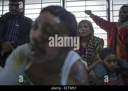 Dhaka, Bangladesh. 21st Jan, 2015. Auto rickshaw driver Abdur Rashid 40 screaming suffer of burn injuries from an - Stock Photo