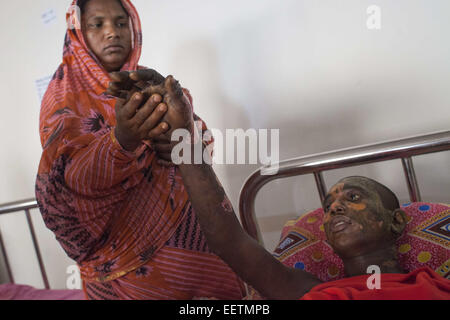 Dhaka, Bangladesh. 21st Jan, 2015. Masum 15 suffering burn injuries from an attack on a bus during a nationwide - Stock Photo