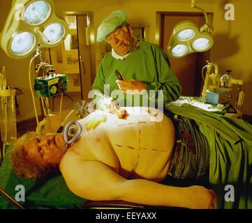 Hamburg, Germany, beauty surgeon operates obese patients - Stock Photo