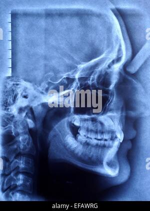 x-ray image of human skull - Stock Photo