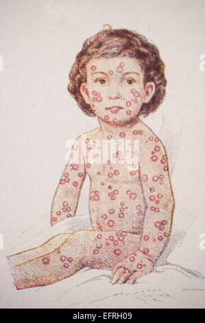 Child with small pox, circa 1912. - Stock Photo