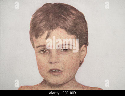 Child with measles, circa 1912. - Stock Photo