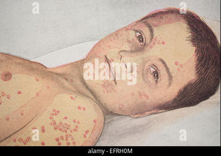 Child showing an outbreak of small pox lesions, circa 1912 - Stock Photo