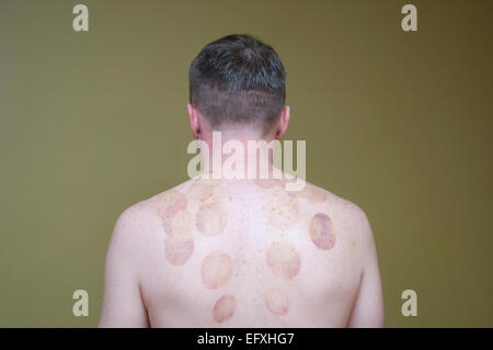 Temporary skin bruising from cupping therapy, an ancient form of alternative medicine - Stock Photo