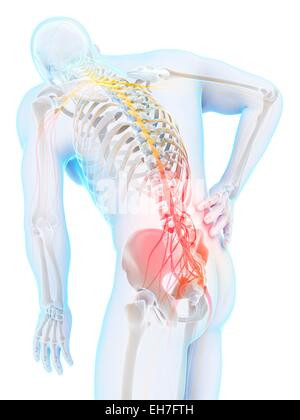 Human back pain, artwork - Stock Photo