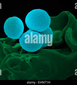 Coloured scanning electron micrograph (SEM) of methicillin-resistant Staphylococcus aureus (MRSA) bacteria.
