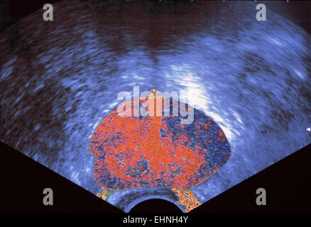 Ultrasound scan of the prostate. - Stock Photo