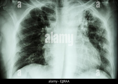 Pulmonary Tuberculosis .  Chest X-ray : interstitial infiltration at left upper lung due to Mycobacterium Tuberculosis - Stock Photo
