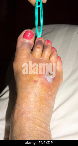 Foot injury Hematoma with infection, bruising and swelling - Stock Photo