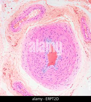 Blood vessels. Light micrograph of a section through tissue showing an artery (middle ) and a vein (top left). Surrounding the artery and vein are layers of smooth muscle (pink), and fibrous connective tissue (orange). Arteries carry blood away from the h