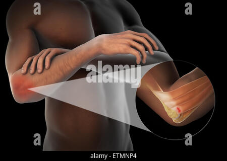Illustration of the arm with transparent skin to show injury to the lateral epicondyle tendon, known as lateral - Stock Photo