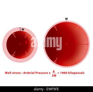 ANEURYSM BLOOD PRESSURE - Stock Photo