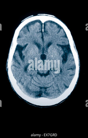CT scan of an 84 year old man with Alzheimer's disease.  CT shows brain atrophy. - Stock Photo