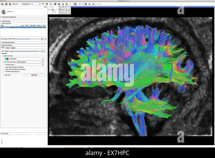 Fiber tractography image of the human brain - Stock Photo