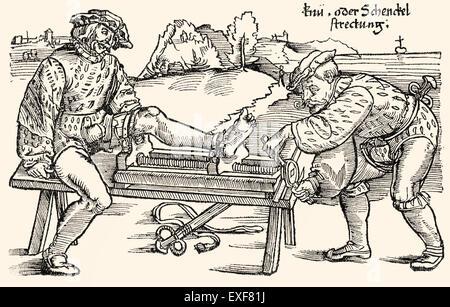 Leg extension on a stretching rack, orthopedic therapy, woodcut from 'Feldtbuch der Wundartzney' by Hans von Gersdorff, - Stock Photo