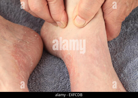 A man checks the reddened, dry skin of athletes foot on both feet. - Stock Photo