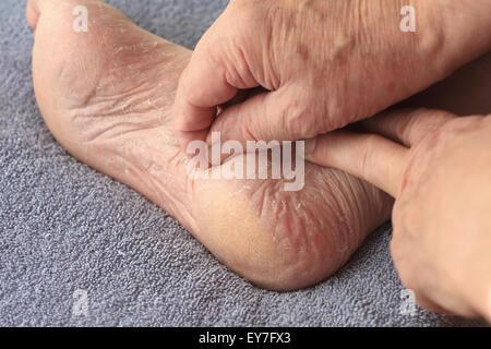 A man peeling his athletes foot dry skin - Stock Photo