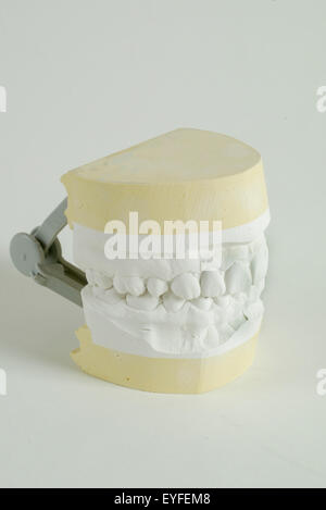 A dental study cast of upper and lower jaws. The cast is a positive reproduction of teeth and surrounding structures - Stock Photo