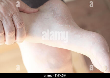 A senior man checks the dry, peeling skin on his foot. - Stock Photo