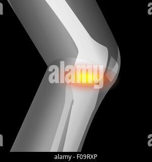 arthritis in knee, pain of knee, suffering from knee, vector - Stock Photo