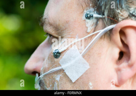 A middle aged man wears polysomnography electrodes to measure brain activity, breathing and movement during sleep. - Stock Photo
